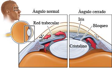 fisiopatologia del glaucoma de angulo cerrado pdf
